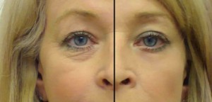 Eye secrets strips before and after